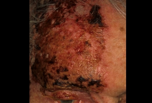If herpes zoster ophthalmicus is suspected, ophthalmology should be consulted immediately 2