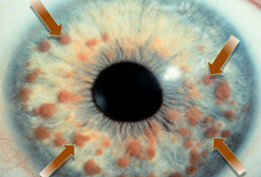 What the Eyes Tell You Abnormalities of the Iris
