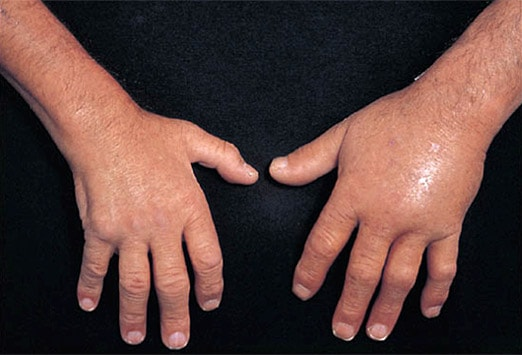 rash caused by rheumatoid arthritis