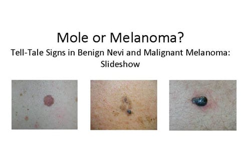 mole or melanoma? tell-tale signs in benign nevi and malignant, Human Body