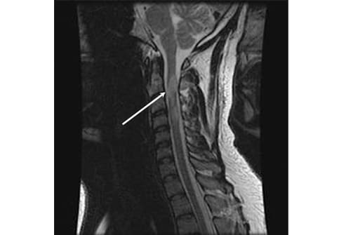 Research: Spinal Lesions at First neurological signs increase risk of ...