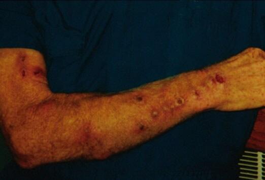 Nontuberculous mycobacteria - Wikipedia