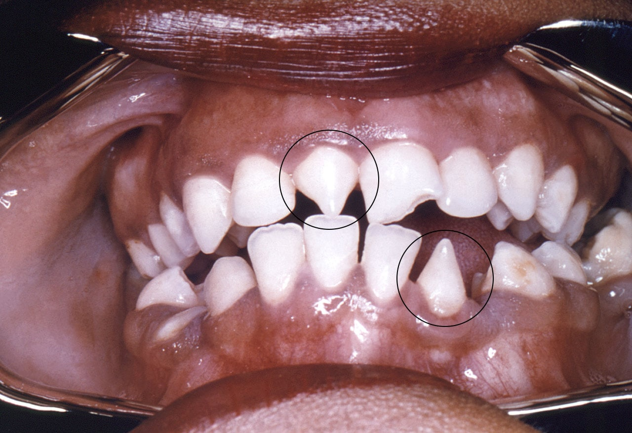 year-old boy presents with multiple vesicles around his lips ...