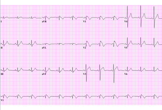 abnormal ecg readings