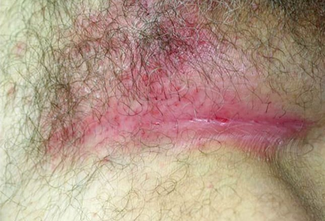 ultraviolet and inverse psoriasis Inverse psoriasis (also known as intertriginous psoriasis) shows up as very red lesions in body folds it may appear smooth and shiny many people have another type.
