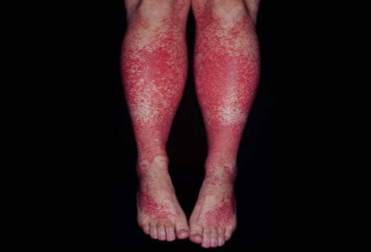 Red Rash On Legs
