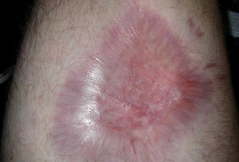 spider bite symptoms and pictures. recluse spider bite symptoms.