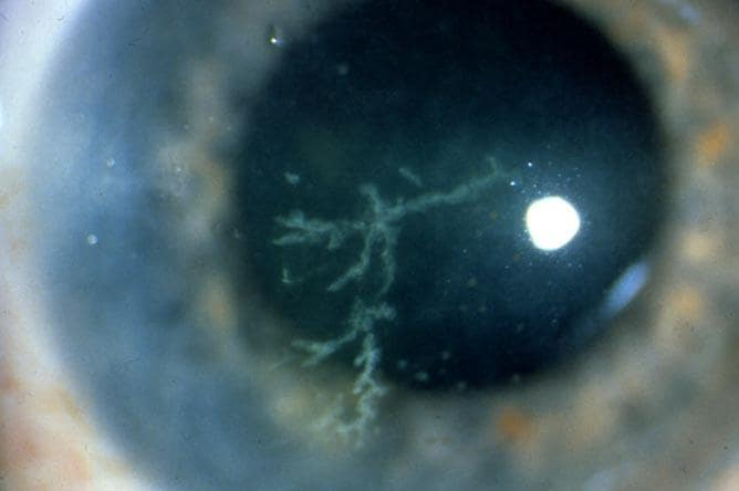 PURPOSE: To report two cases of herpes simplex virus (HSV) keratitis after laser in situ keratomileusis (LASIK) 2