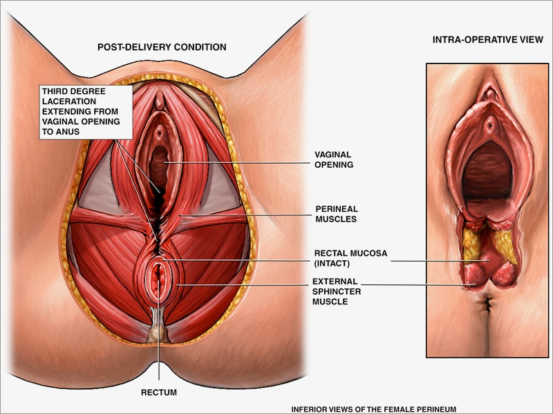 Should I use Clobestol on a perineum fissure.. Thread ...