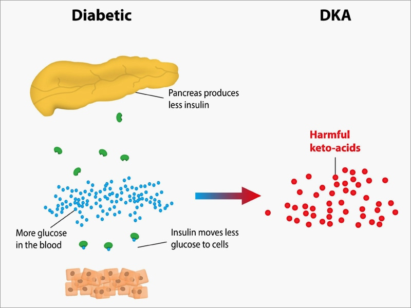 ketoacidosis is bariatric surgery risk in type 1 diabetes, Skeleton