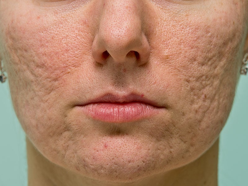 FDA OKs Epiduo Forte Gel for Acne