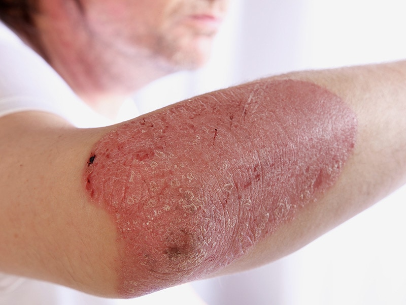 HIV infection can make psoriasis and psoriatic arthropathy worse 1