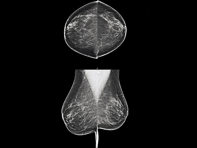 Overdiagnosis of Breast Cancer Is Clinically Insignificant
