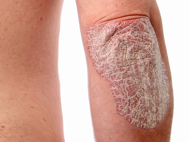 Slide show: Types of psoriasis (psoriasis pictures) - Mayo ...