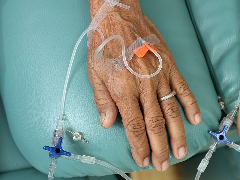 http://img.medscape.com/thumbnail_library/dt_150803_chemotherapy_elderly_senior_800x600.jpg