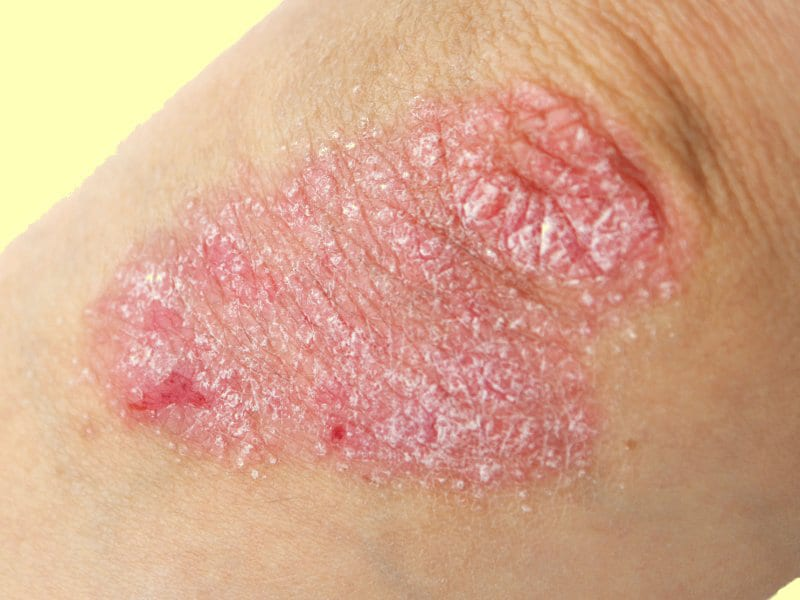 Image result for psoriasis medscape