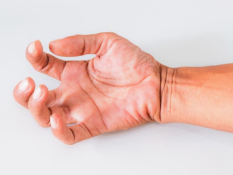 arbaclofen-er decreases ms-related spasticity, Skeleton