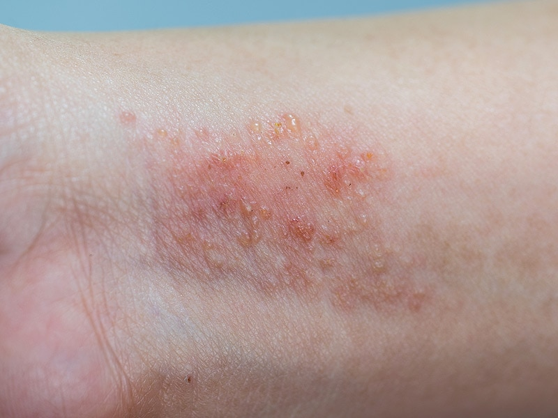 il-31 inhibitor improves atopic dermatitis, Human Body