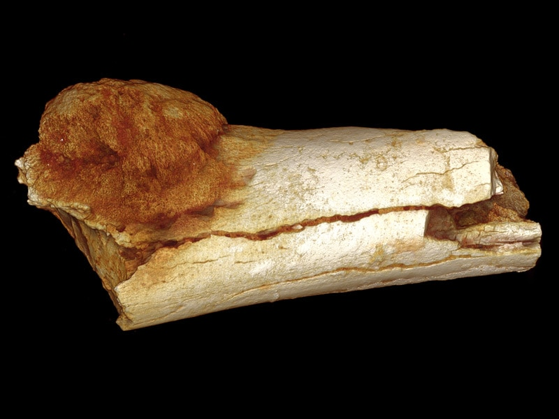 News Even 2 Million Years Ago Cancer Plagued Human Ancestors