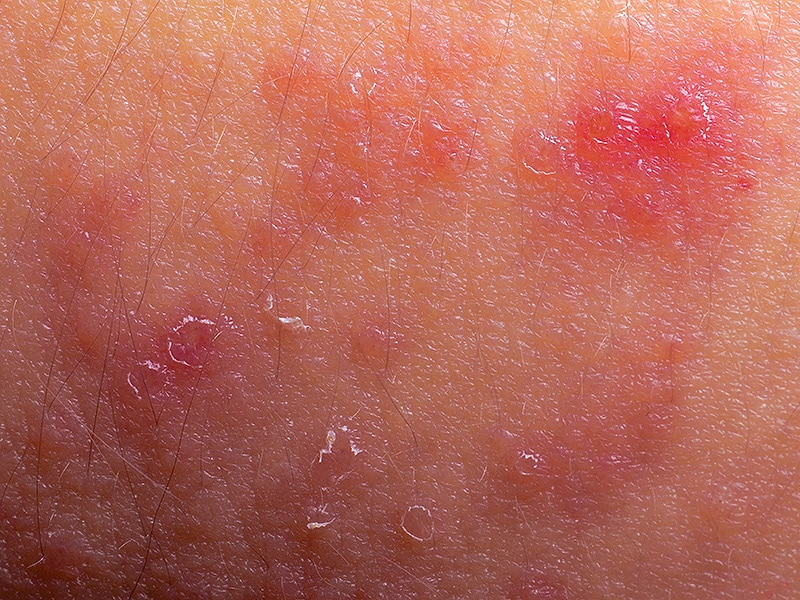 Subcutaneous Methotrexate Safe, Effective for Psoriasis