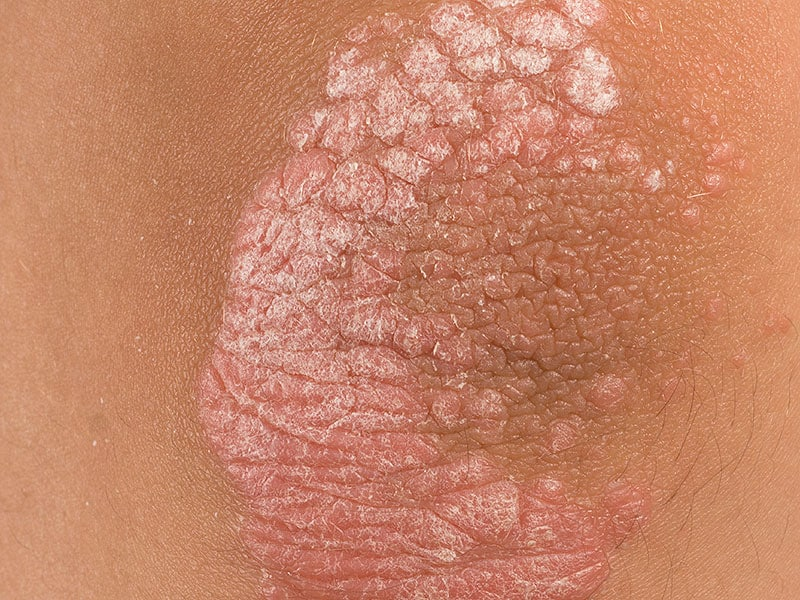 Psoriasis: Guselkumab Shows Activity in Small Trial