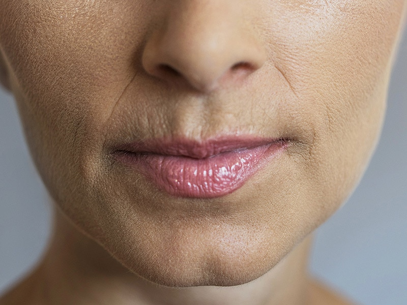 FDA Clears Two New Dermal Fillers for Laugh Lines