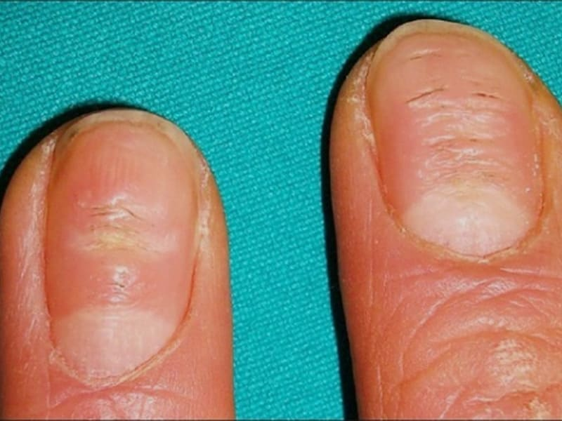 Nail psoriasis has features that reflect the focus of disease within the nail unit 1