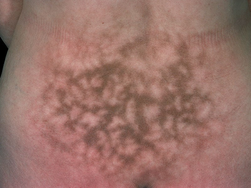 Radiation dermatitis | DermNet New Zealand