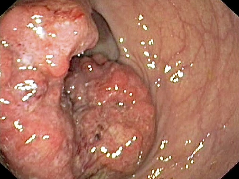 Pictures of anal cancer