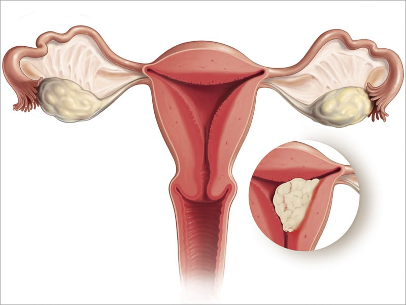 endometrial cance Uterine cancer is a disease in which malignant (cancer) cells form in the tissues of the endometrium the endometrium is the lining of the uterus, a hollow.