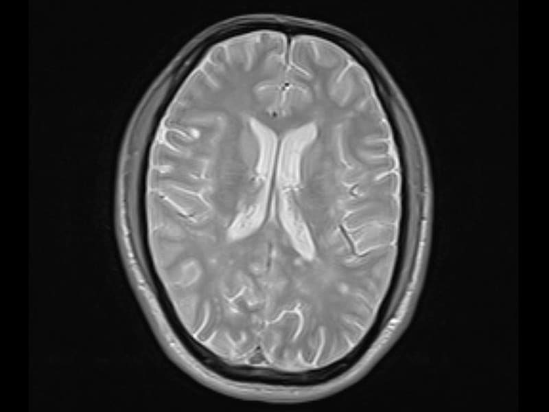 multiple sclerosis case study presentation Introduction it is important to note that patients with ms have subjective complaints and objective signs that frequently are not attributable to one specific lesion in the cns.