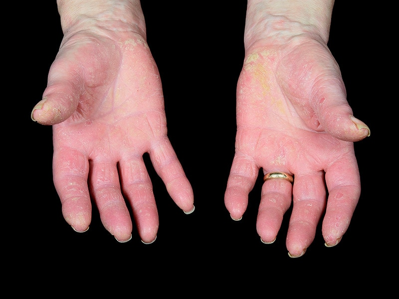 Ixekizumab Effective in Phase 3 Psoriatic Arthritis Trial