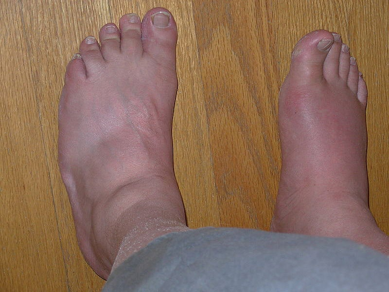 Gout Pictures, Images & Photos | Photobucket
