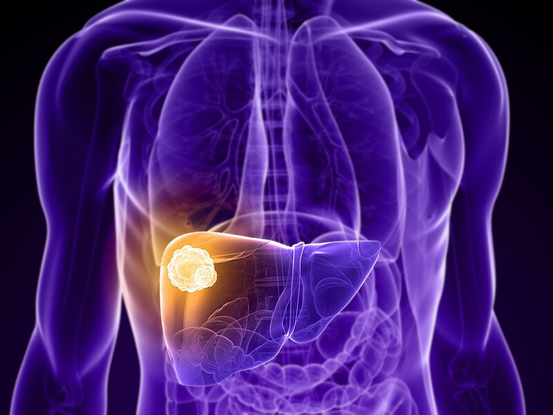 Regorafenib 'New Gold Standard' for Second-Line in Liver Cancer