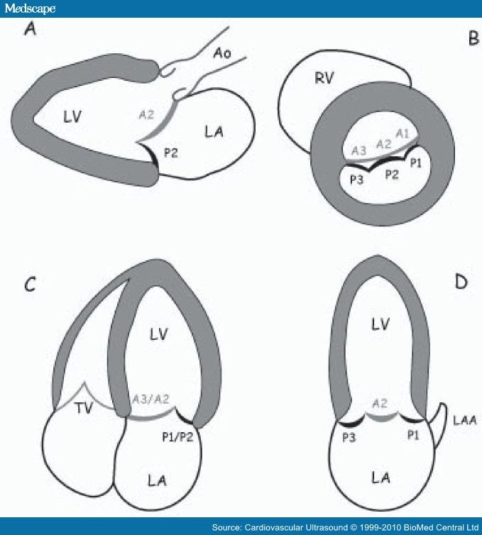 Preoperative Scallop By Scallop Assessment Of Mitral