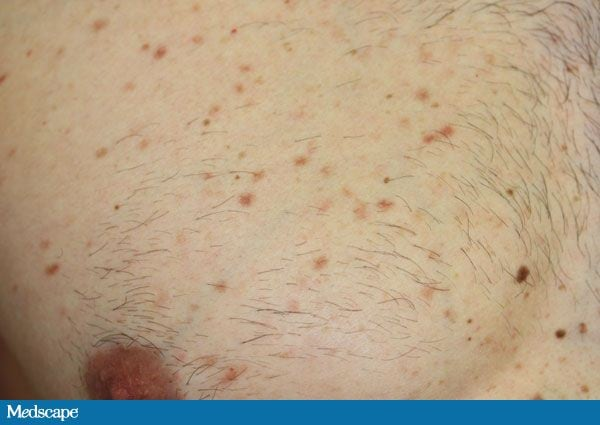macule acne - photo #42