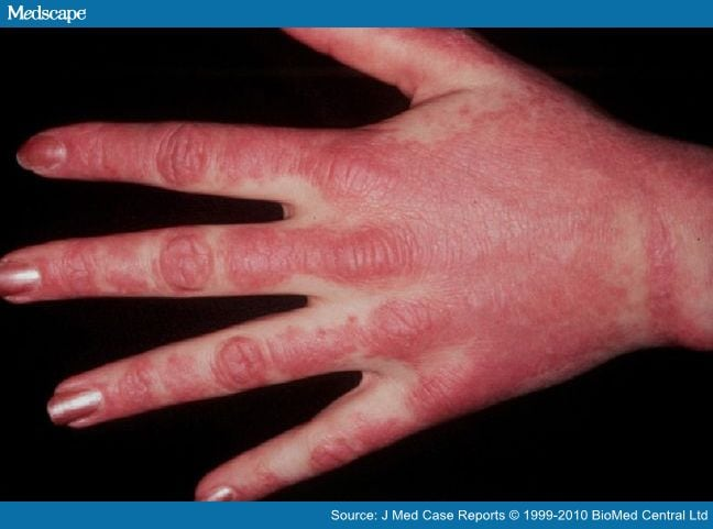 post steroid panniculitis