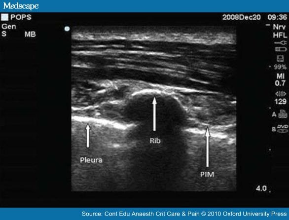 ultrasound guided caudal epidural steroid injection