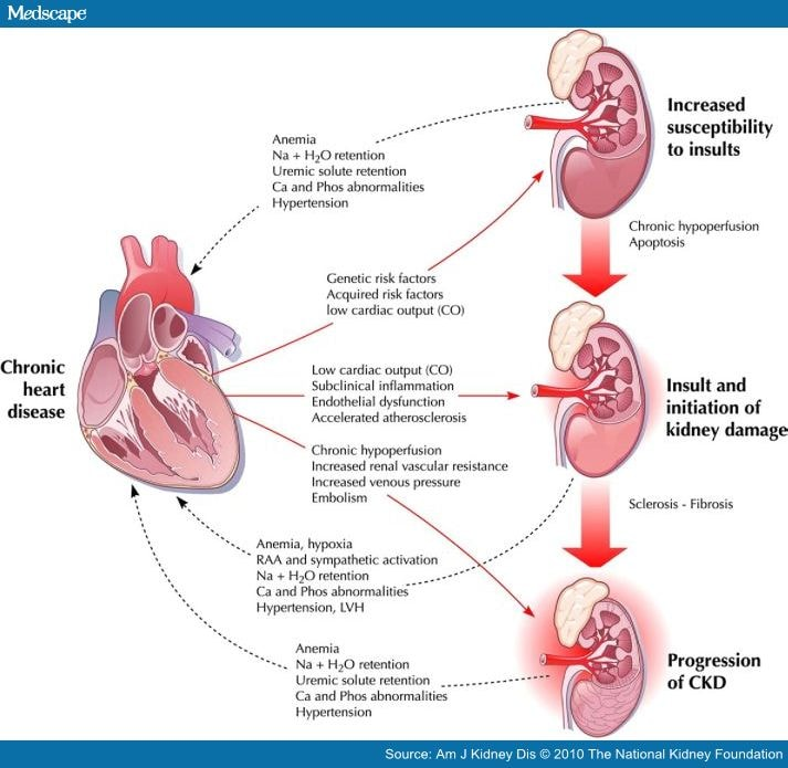 Heart Failure Pathophysiology Of Heart Failure