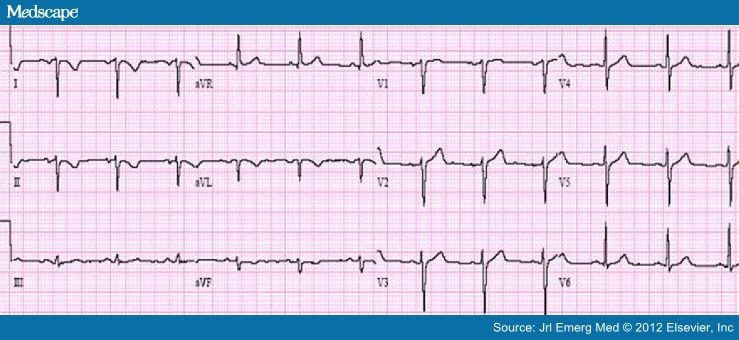 Ecg Electrode Misplacement Misconnection And Artifact