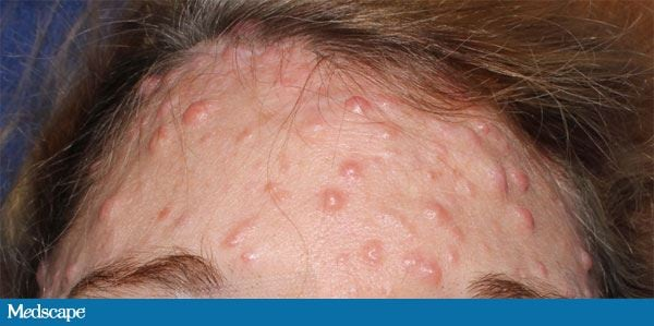 Facial Papules and Nodules in a Woman: Diagnosis?