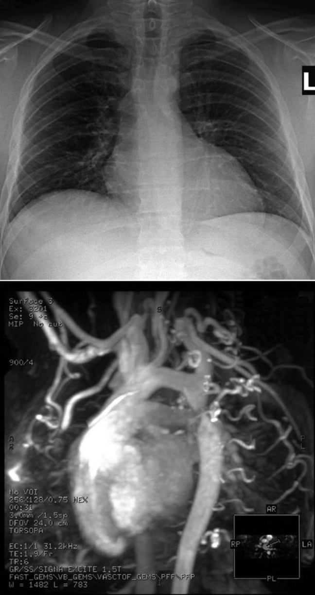 Epigastric Pain Vomiting And Stool Changes In A 27 Year