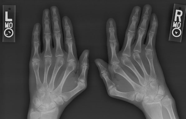 osteopenia caused by steroids