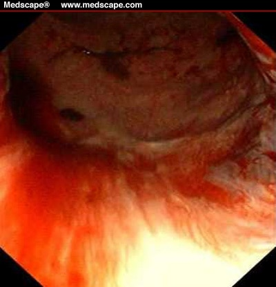 A 74 Year Old Woman Presenting With Acute Rectal Bleeding