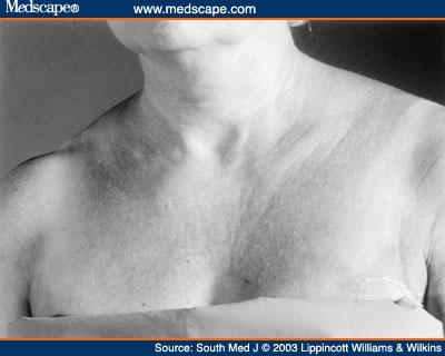 Clavicle Lymph Nodes