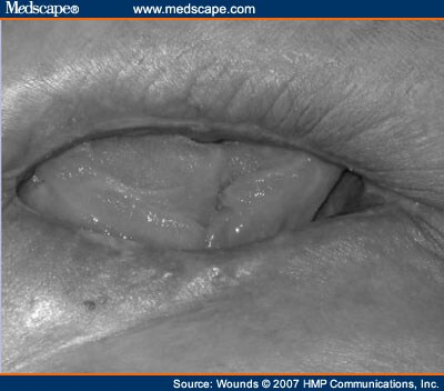 Inguinal LymphadenopathyInguinal Lymphadenopathy