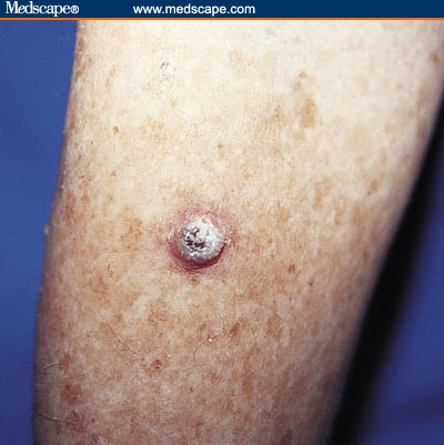 wallpapers of Ghost Rider: Nodular Basal Cell Carcinoma