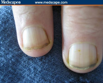 What is meant by Red Violet discoloration under the fingernails