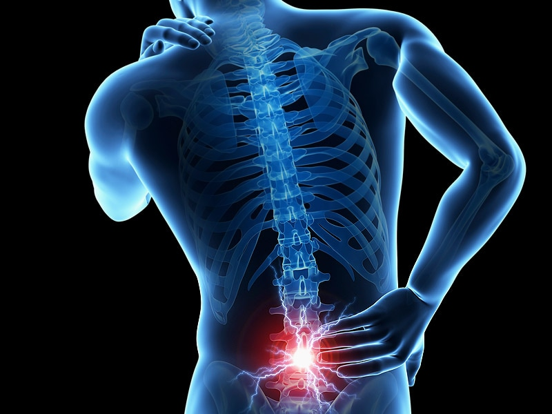 Spinal Cord Stimulation Data Show Low Conversion Rate