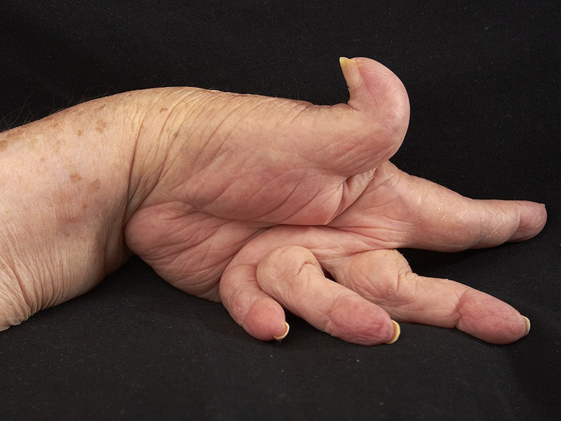 Rheumatoid arthritis finger deformation, usually eat these kinds of food, and say goodbye to it